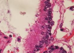 肺癌組織画像
