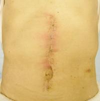 surgery_06