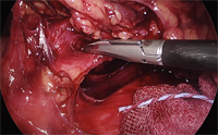 surgery_08